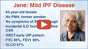 Understanding IPF as a Part of the Overall Scope of ILD